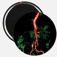 'Bilateral renal artery stenosis, MRA sca - 2.25