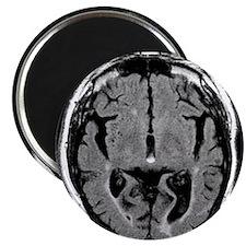 Alcoholic dementia, MRI scan - 2.25