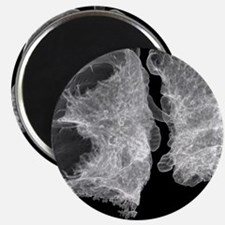 Emphysema of the lungs, CT scan - 2.25