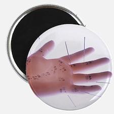Acupuncture model - 2.25
