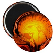 Brain anatomy, MRI scan - 2.25