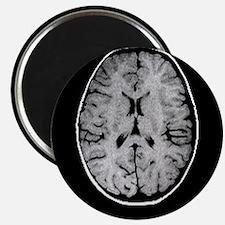 Child's brain, MRI scan - 2.25
