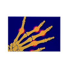Arthritic hand - Rectangle Magnet