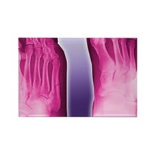 Fractured foot, coloured X-ray - Rectangle Magnet