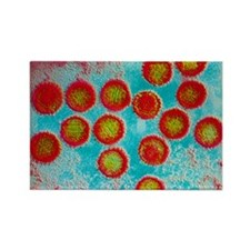 Epstein-Barr virus particles - Rectangle Magnet