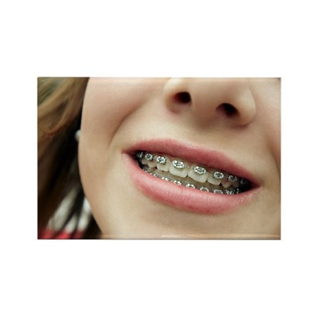 Dental braces - Rectangle Magnet