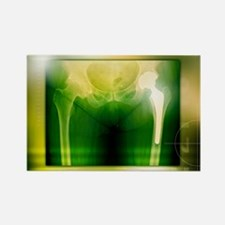 Hip replacement, X-ray - Rectangle Magnet