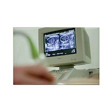 Pregnancy ultrasound - Rectangle Magnet