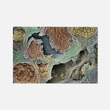 Prostate cancer, SEM - Rectangle Magnet