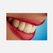 wing healthy teeth - Rectangle Magnet