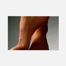 onto their toes - Rectangle Magnet