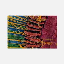 Iris of the eye, SEM - Rectangle Magnet