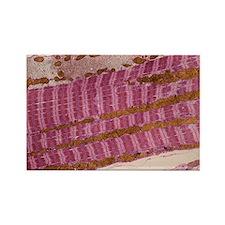 Skeletal muscle fibre, TEM - Rectangle Magnet