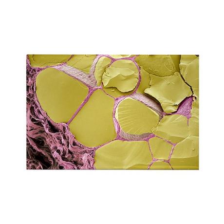 Thyroid gland, SEM - Rectangle Magnet