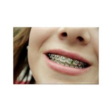 Trapped food in dental braces - Rectangle Magnet
