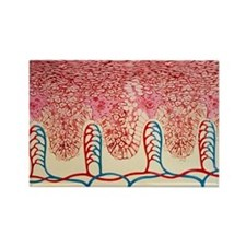 nburnt skin - Rectangle Magnet