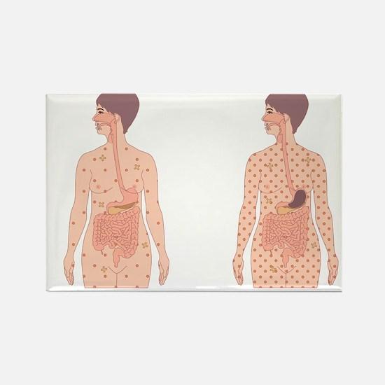 Diabetes, artwork - Rectangle Magnet (10 pk)