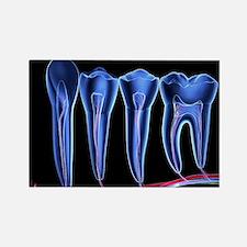 Teeth, cross section - Rectangle Magnet (10 pk)