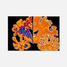 diseased brain vs normal - Rectangle Magnet (10 pk