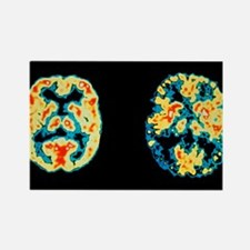 disease brains - Rectangle Magnet (10 pk)