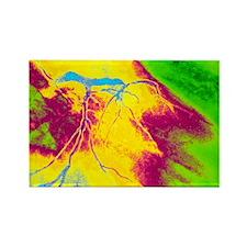 t coronary artery stenosis - Rectangle Magnet (10