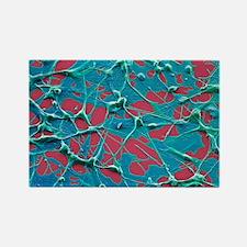Skin cancer cells, SEM - Rectangle Magnet (10 pk)