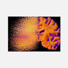 Brain disorder - Rectangle Magnet (10 pk)