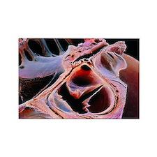 aortic valve - Rectangle Magnet (10 pk)