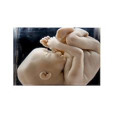 Foetus at 18 weeks - Rectangle Magnet (100 pk)