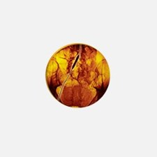 Iliac artery angioplasty, angiogram - Mini Button
