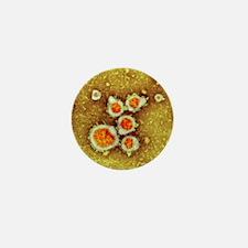 Respiratory syncytial virus, TEM - Mini Button