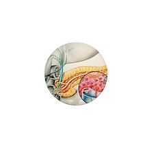 lin production - Mini Button