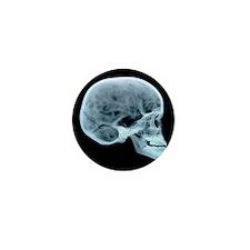 Child's skull - Mini Button (100 pk)