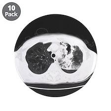 Lung abscess, CT scan - 3.5