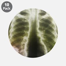 Pulmonary tapeworm cysts, X-ray - 3.5