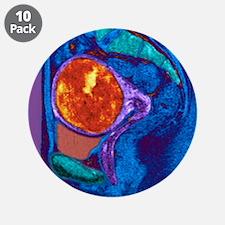 Uterine fibroid, MRI scan - 3.5