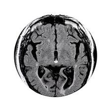 Alcoholic dementia, MRI scan - 3.5