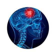 Brain cancer, artwork - 3.5