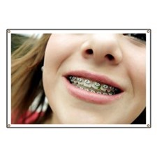 Trapped food in dental braces - Banner