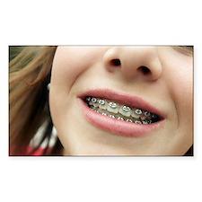 Dental braces - Decal