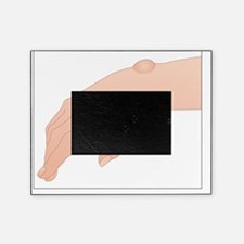 Ganglion cyst, artwork - Picture Frame