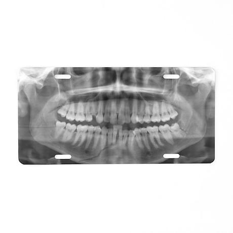 Broken jawbone, X-ray - Aluminum License Plate