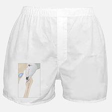 Hip replacement, artwork - Boxer Shorts