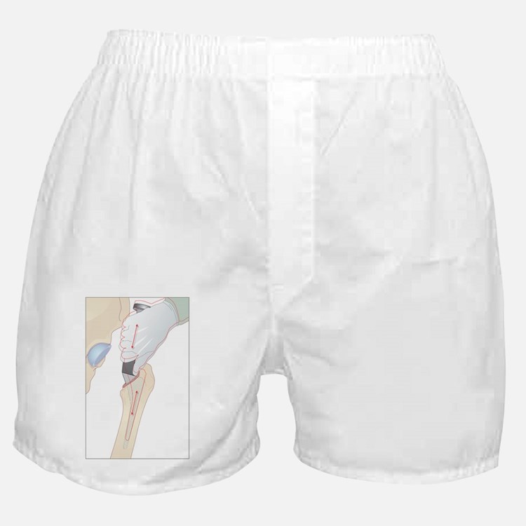 Hip replacement, artwork - Boxer Shorts