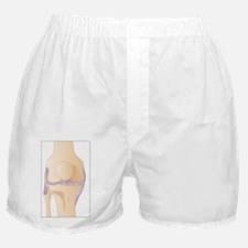 Knee in anterior view, artwork - Boxer Shorts