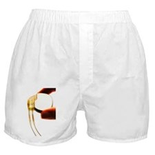 Heart pacemaker - Boxer Shorts