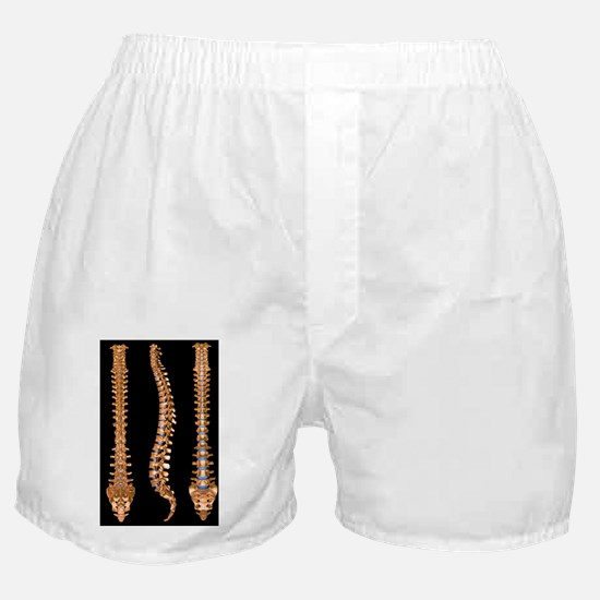 a human spine - Boxer Shorts