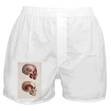 Head muscles - Boxer Shorts