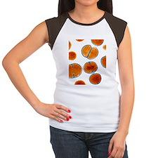 MRSA bacteria, TEM - Women's Cap Sleeve T-Shirt