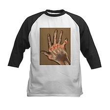 Arthritic hand, X-ray - Tee